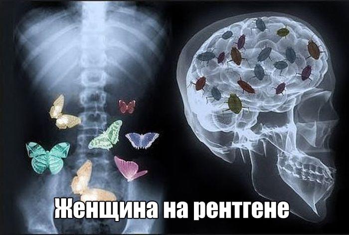 Смешное фото Женщина на рентгене